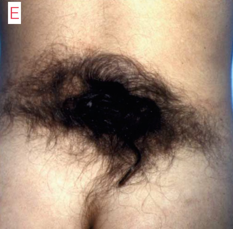 hairy buttick copy